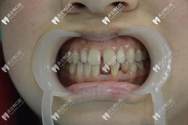 这是她门牙做6颗爱尔创全瓷牙修复前后的对比照片哦