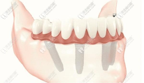 重庆牙博士口腔4-6颗植体恢复半口牙