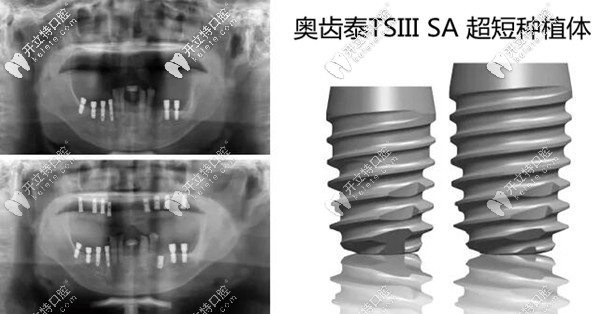 下颌用韩国奥齿泰TSIII SA超短种植体的案例