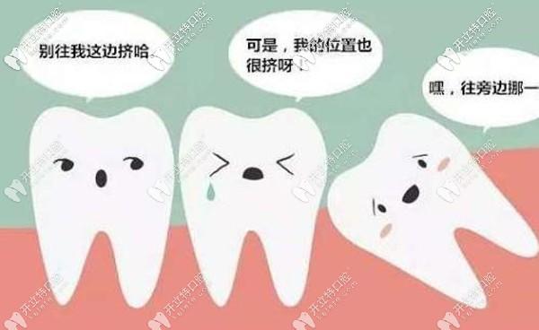 广州哪个牙科拔智齿便宜又好,最好推荐可以用医保报销的~