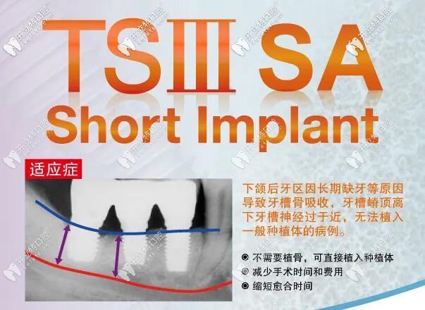 韩国奥齿泰TSIII SA超短种植体的优点