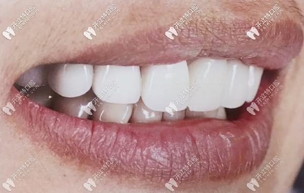 前门牙做瓷贴面还是比美容冠要好些,起码对牙齿损伤小许多