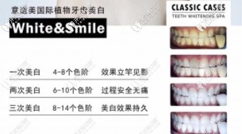 深圳正夫口腔植物牙齿美白优势