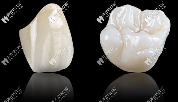 格莱美全瓷牙是进口的吗,做一颗的价格大概是多少?