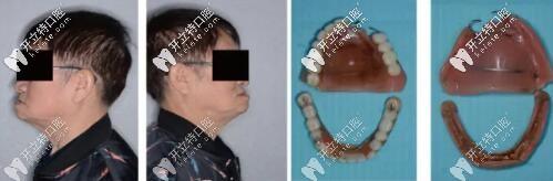 韩国奥齿泰种植体做全口杆卡式覆盖义齿修复
