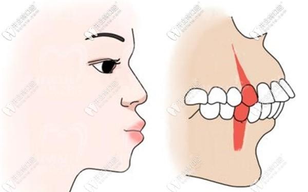 分析拔牙矫正的优势