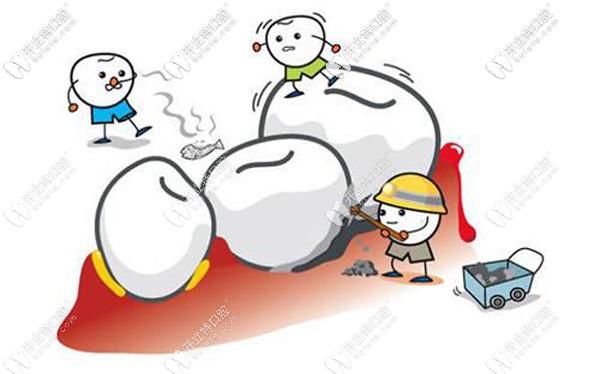 西安洗牙价格一般多少,西安长安/未央等11区洁牙收费参考