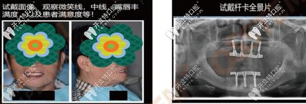 韩国奥齿泰种植体做全口杆卡式覆盖义齿修复案例