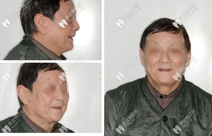 唠唠78岁爷爷全口缺失,在武汉德韩做即拔即种种植牙的流程