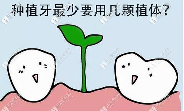 全口种植牙最少要做多少颗?其实跟种牙方案的选择有关