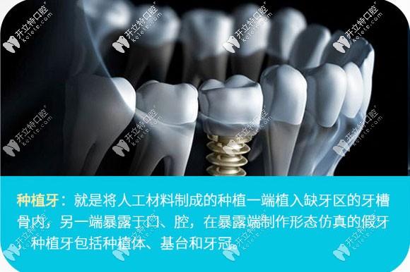 在我们广州新塘华医口腔做一颗韩国登腾种植牙花了7千多元