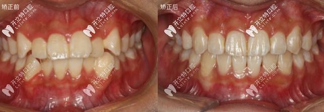 安氏三类错颌畸形用隐适美隐形牙套矫正案例流出,效果超赞