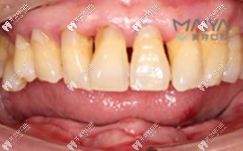 下半口桥架式种植牙案例:只需5颗种植体就能恢复半口牙