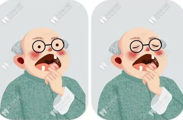 试问种植牙咀嚼功能怎么样,和自己的真牙咀嚼效率一样吗?