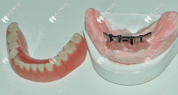 杆卡在牙齿模型上就位