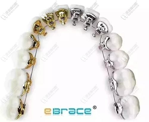 eBrace舌侧矫正外观