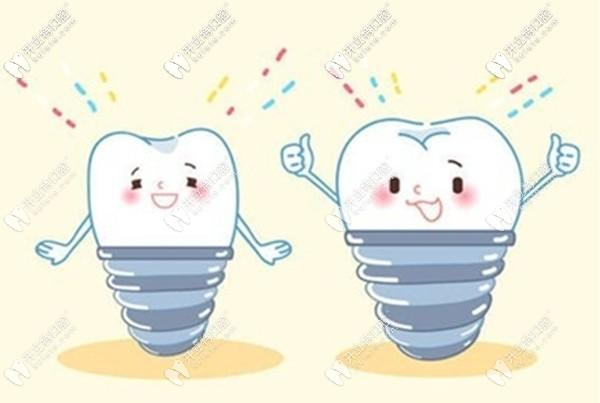 西安圣贝牙科种植牙怎么样,李明勇医生的种牙技术来见证
