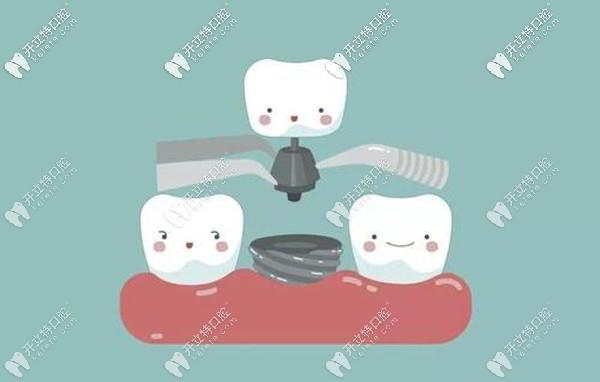 唐山各口腔种植牙收费