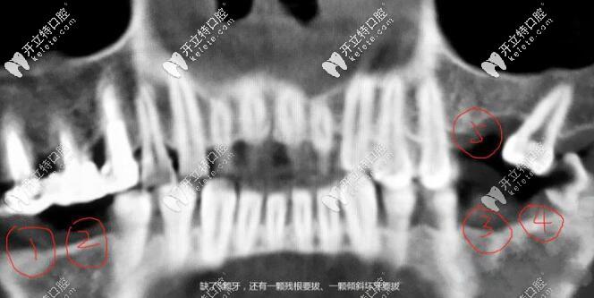 两边后牙连缺两颗已有五六年,用瑞士ITI种植体半小时就解决