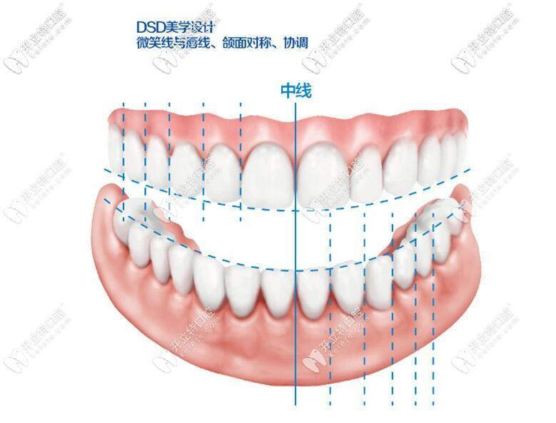 DSD微笑美学设计解析