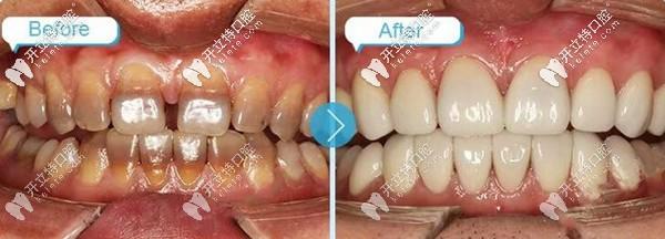 重度四环素牙贴面修复案例:上下排共做16颗美加超薄瓷贴面