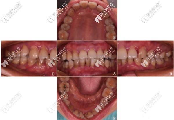 重度牙周炎案例:除了控制菌斑外还可联合引导性组织再生术