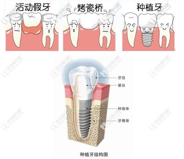 种植牙与活动假牙区别图