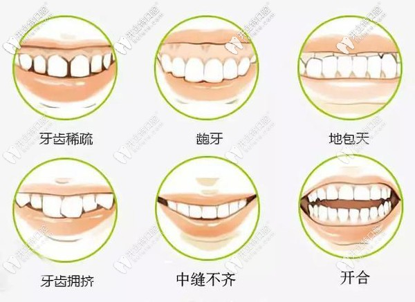 哪种类型牙齿需要做矫正