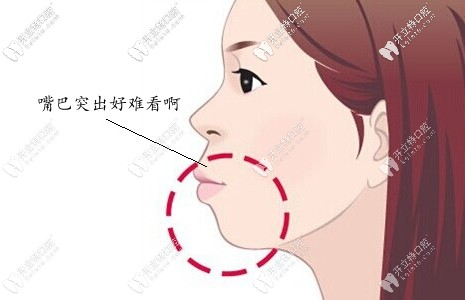 龅牙凸嘴千万不要戴牙套?我骨性凸嘴戴牙套就收回3mm,欧耶
