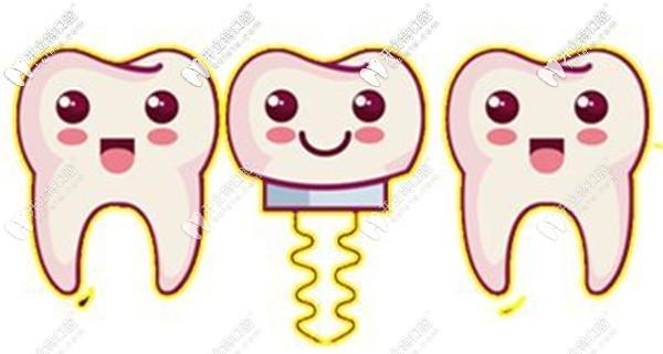 太原众植齿科种植牙收费贵不