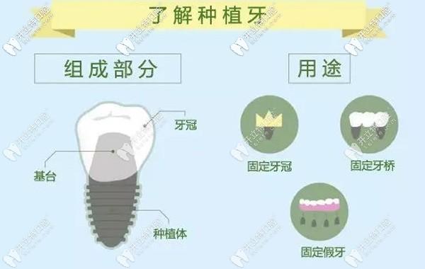 邵兴市口腔医院种植牙价格表里有绍兴种植一颗牙齿多少钱~