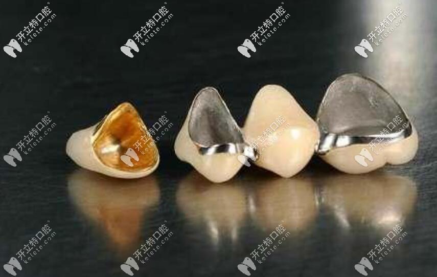 价格不同的烤瓷牙可能材料不一样