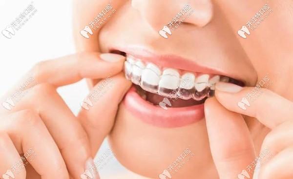 看过南充口腔矫正牙齿收费标准,便知南充箍牙价格多少钱~