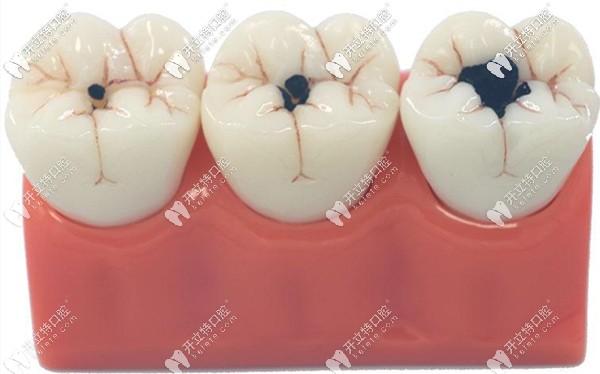 牙齿上面有小黑点怎么办