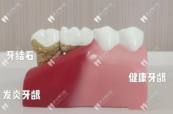 洗牙是维护牙齿健康的有效方法