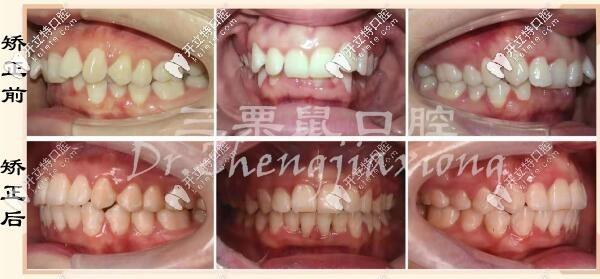 福州三栗鼠口腔深覆颌牙齿矫正案例