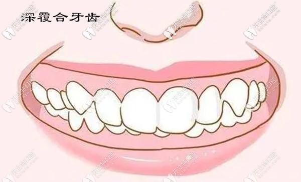 这是我做牙齿不齐+深覆合矫正前后的对比照片,还有正畸过程