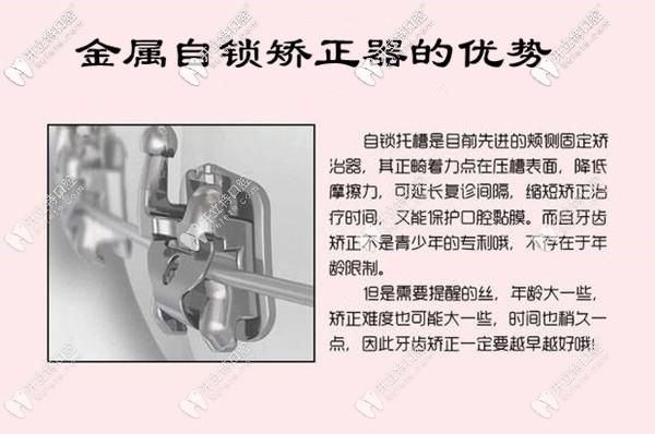 福州三栗鼠口腔金属自锁托槽优势