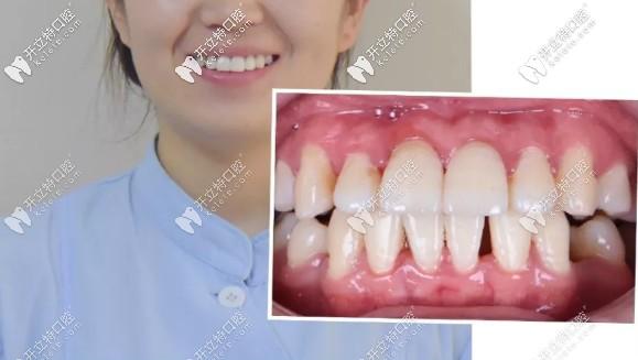 看我牙齿不齐戴金属牙套和隐适美隐形牙套的全过程及效果