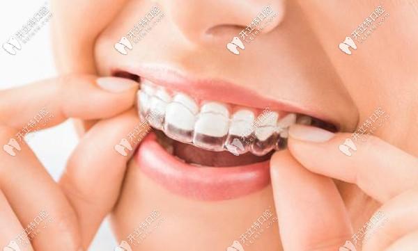 求郑州口腔矫正牙齿的费用,隐适美箍牙价格一般多少钱