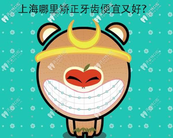 上海哪里矫正牙齿便宜又好呀?想选个正规的牙科医院整牙