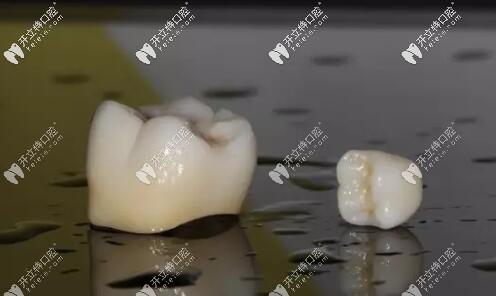 翔通氧化锆全瓷牙怎么样?国产亲民牙冠本文为你揭晓价格
