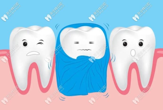牙齿有黑点但没有洞需要马上补吗?不补的话会一直蔓延?