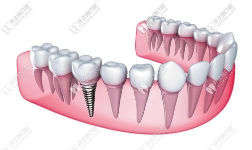 即刻种植牙和传统种植牙的区别 不仅在于即拔即种当天能用