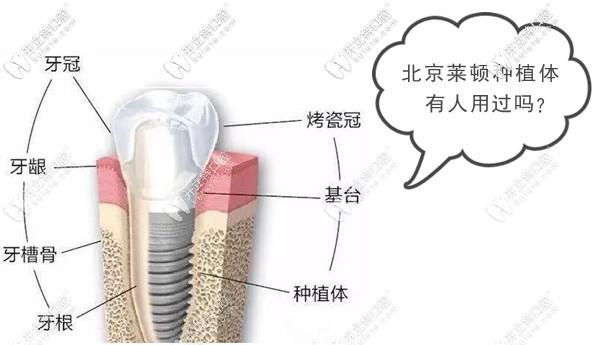 北京莱顿种植体有人用过吗?听说这是国产种植牙主流品牌
