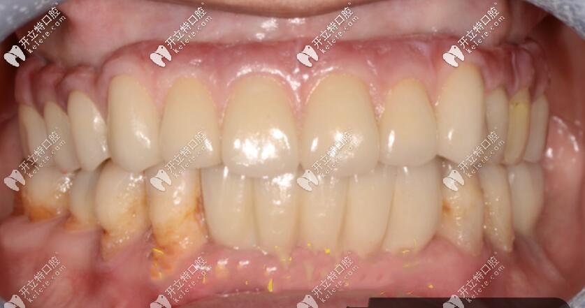 59岁老妈做的上半口allon6即刻负重种植牙,就是当天种当天用