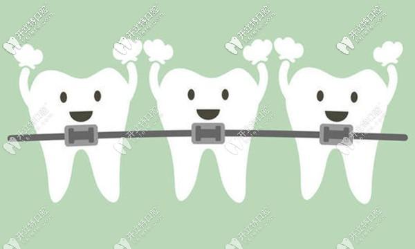 上海罗缘口腔矫正牙齿收费价格好样的,那整牙技术咋样嘞