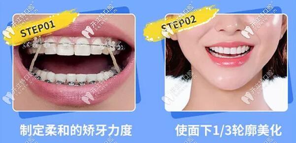 去重庆南岸区的齐美口腔做正畸好不好?戴金属自锁托槽