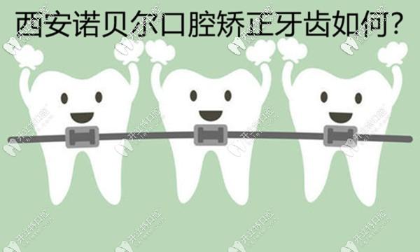 西安诺贝尔口腔矫正牙齿好不好,用正畸案例来评价下