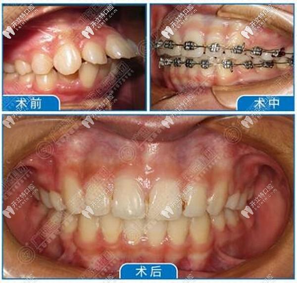 玉林蓝天口腔医院正畸效果好吗?总店牙齿矫正收费标准是